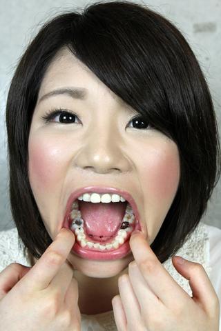芦川めい 6番と前歯が