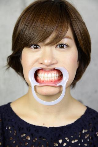 山田真美 前歯に自信あり