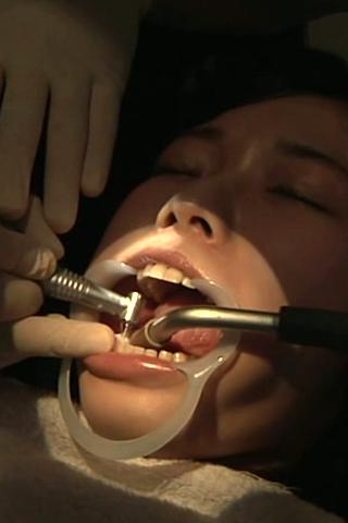 【歯科医師治療映像】痛みに耐えながらの虫歯治療【特選画像50枚付】